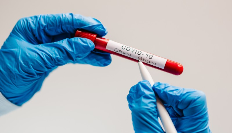 Covid-19 text. A hands of doctor, nurse, scientist writes with a pen and confirms the negative result, hold a test tube with biological sample. Coronavirus. Blood is dont infected. New cases of cure.