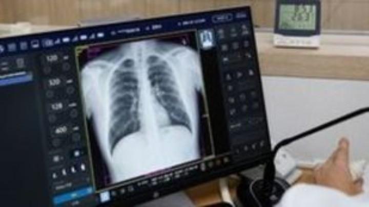 Σύστημα τεχνητής νοημοσύνης μπορεί να διαγνώσει έως και 1 χρόνο πριν καρκίνο των πνευμόνων